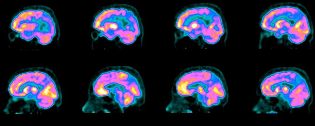 A Long-Sought Blood Test for Alzheimer's is in Reach